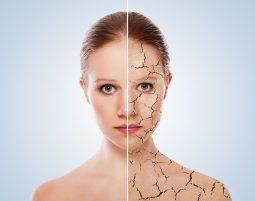 乾燥した女性の肌