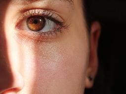 頬の毛穴が縦長の女性