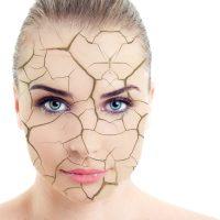 乾燥している女性の肌